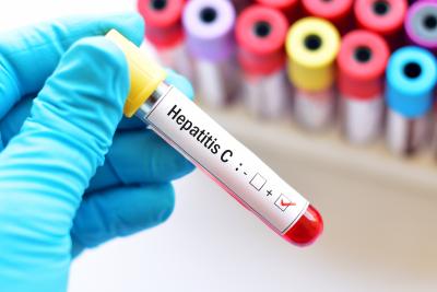 blood sample with hepatitis C